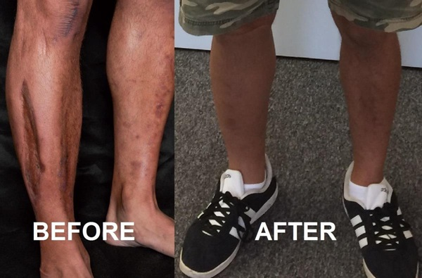 before a scarred leg and after a cosmesis covered up
