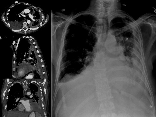 chest x-ray showing mesothelioma work related illness