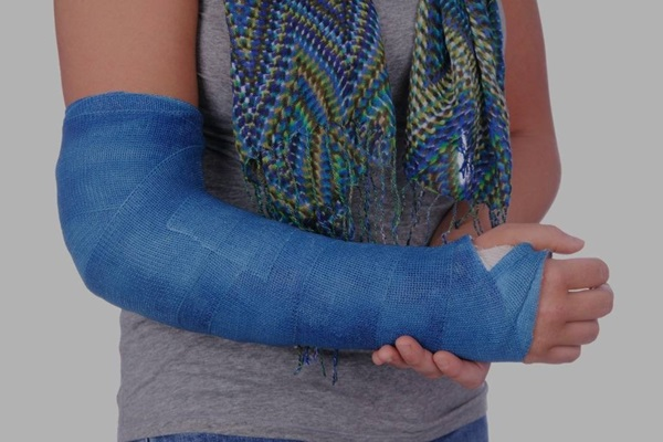 Fractured arm injury at work after a fall