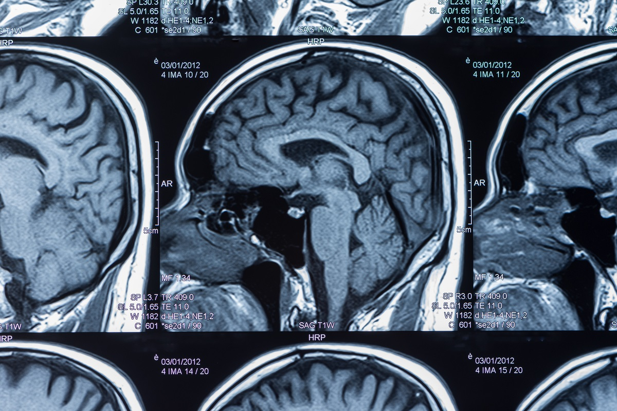 Brain injury treatment involving an MRI scan